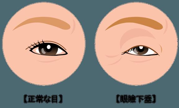眼瞼下垂(がんけんかすい)