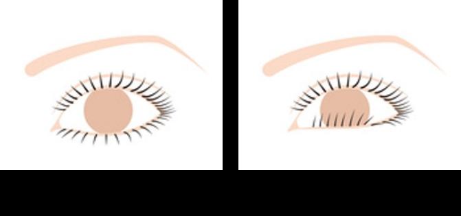 眼瞼内反症(さかまつ毛)