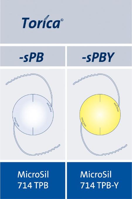 Add-on眼内レンズの種類