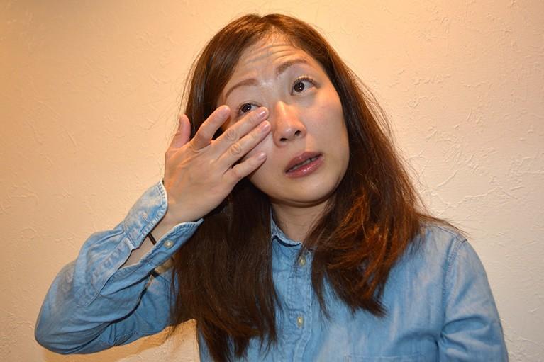 鼻涙管閉塞症