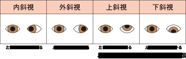 斜視の種類