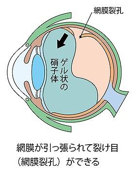 網膜が破損する病気