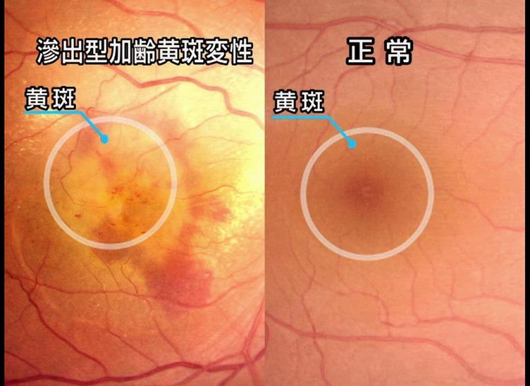 加齢黄斑と正常な眼底