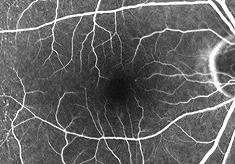 加齢黄斑変性症(正常)蛍光眼底