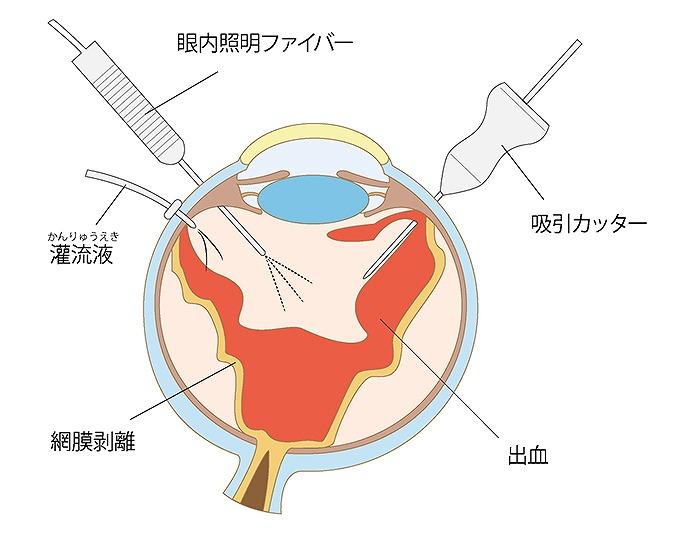 黄斑上膜の治療方法