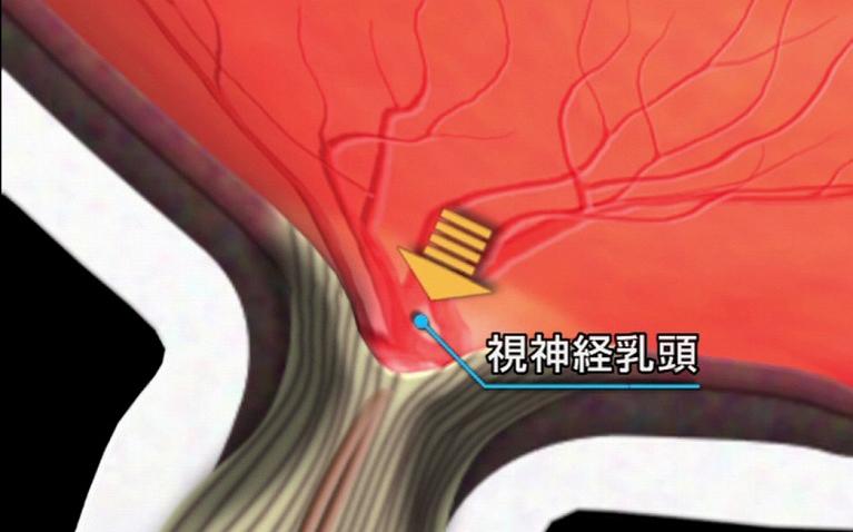 視神経乳頭