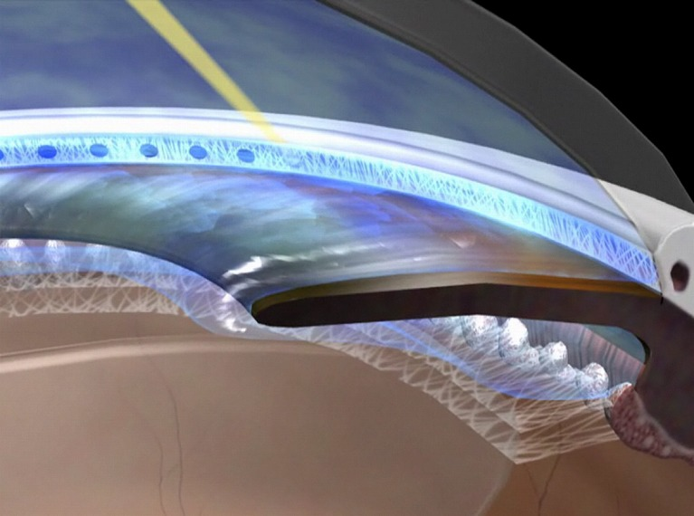 レーザー繊維柱帯形成術(SLT)