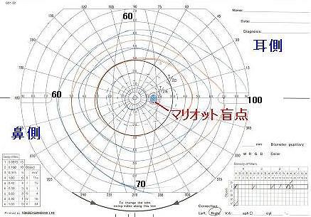 ゴールドマン視野計(動的計測)