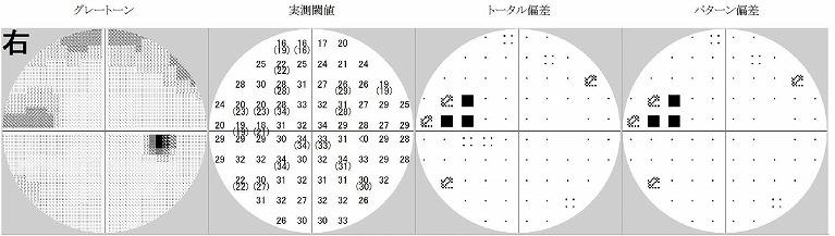 ハンフリー視野計、オプトス視野計(静的計測)