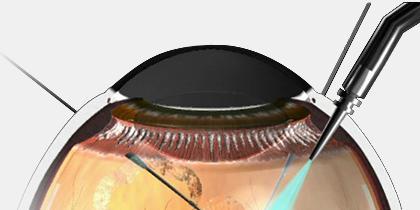 『日帰り網膜硝子体手術』